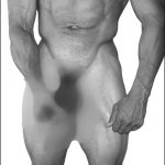 Penis Stretching
