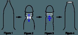 Preputioplasty