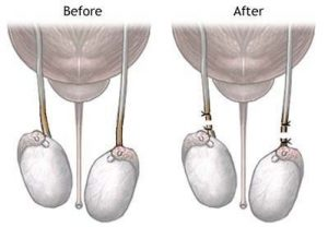 A vasectomy is one form of permanent birth control.