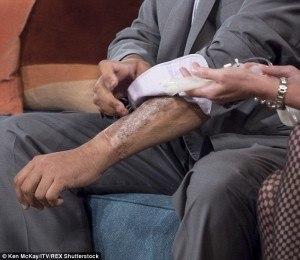 bionic penis arm